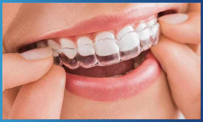 Niềng răng khay trong Invisalign mang lại tính thẩm mỹ cao
