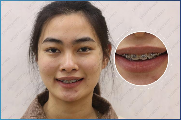 niềng răng mắc cài kim loại buộc chun