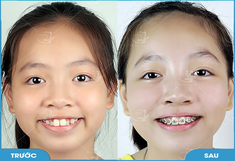 Niềng răng mắc cài kim loại xử lý mọi tình trạng răng từ hô, móm, thưa, khấp khểnh