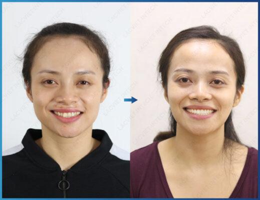 Kết quả cho thấy sau khi niềng răng trong suốt tại nha khoa Lạc Việt Intech
