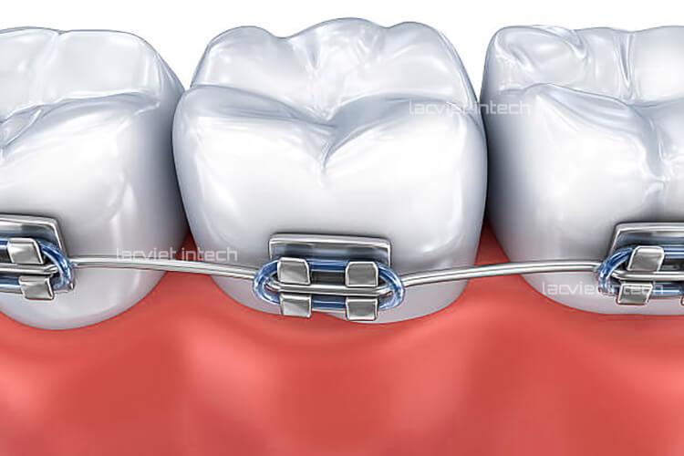 Hình ảnh niềng răng mắc cài kim loại