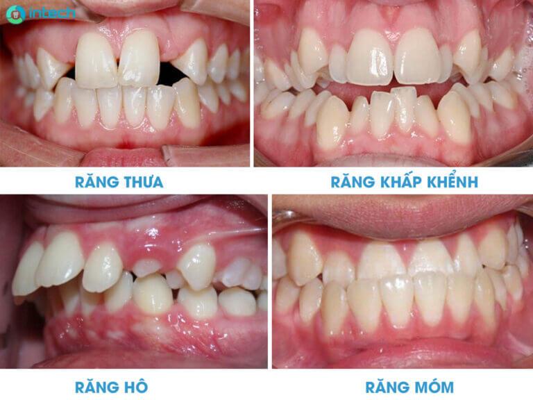 Truong-hop-can-nieng-rang-090221-01.jpg (768×576)