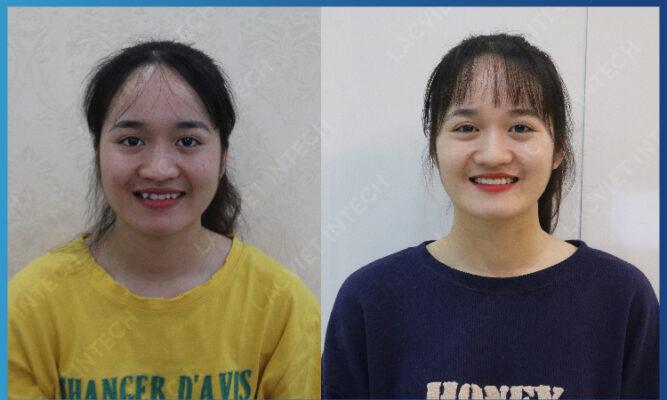 Kết quả so sánh cho thấy trước và sau khi niềng răng mắc cài tự buộc