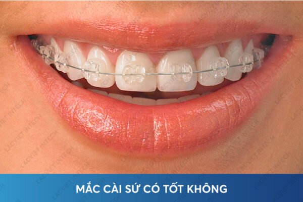 Niềng răng mắc cài sứ luôn mang lại vẻ đẹp, răng chắc khõe