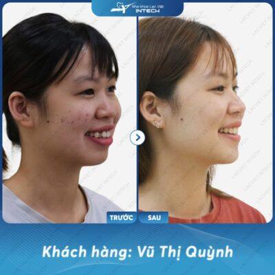Rất hài lòng sau khi niềng răng tại Lạc Việt Intech của Vũ thị Quỳnh