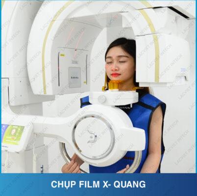 Chụp Xquang là một trong những bước quan trọng niềng răng móm tại nha khoa Lạc Việt Intech