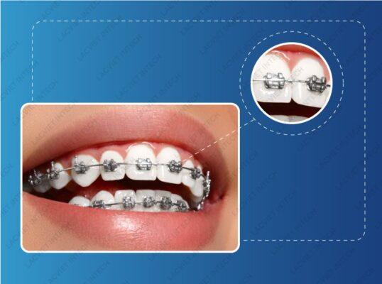 Hình ảnh mô phỏng dây cung niềng răng