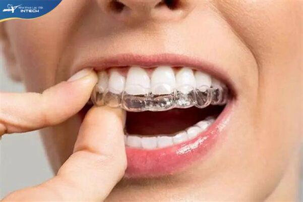 Hàm duy trì trong suốt tương tự như khay niềng răng Invisalign