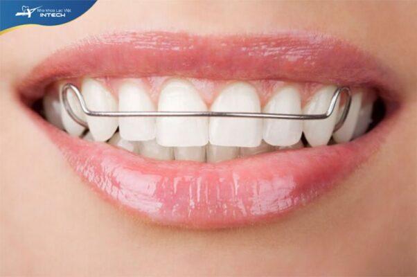 Hàm duy trì giúp răng ổn định sau khi niềng răng