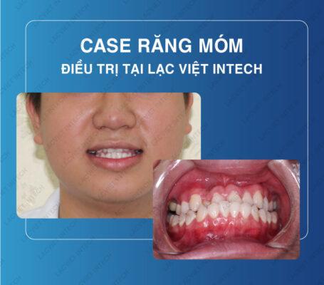 Hình ảnh thực tế mà khách hàng gặp tình trạng răng bị móm