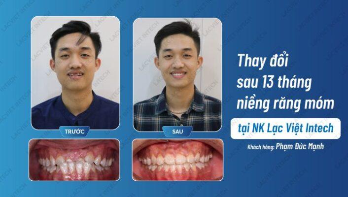 Kết quả so sánh điểm khác biệt trước và sau khi nẹp răng mắc cài