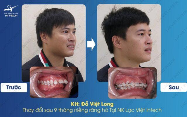 Kết quả chứng minh cho thấy kết quả trước và sau khi mất răng cửa
