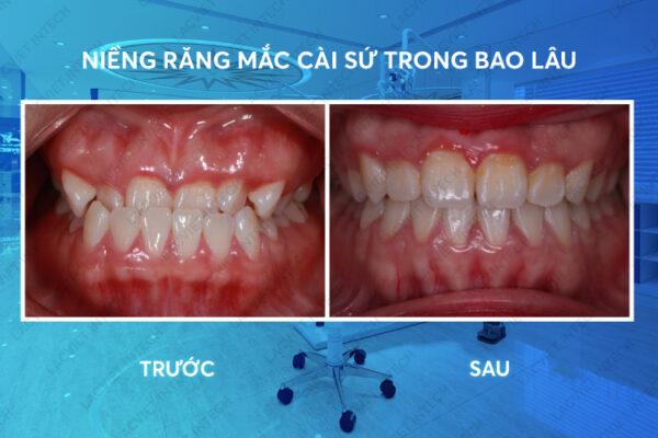 Niềng răng mắc cài sứ còn phục thuộc nhiều yếu tố khác nhau