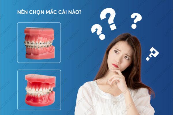 Giúp khách hàng nên lựa chọn niềng răng kim loại mắc cài sứ? hay cài sứ?