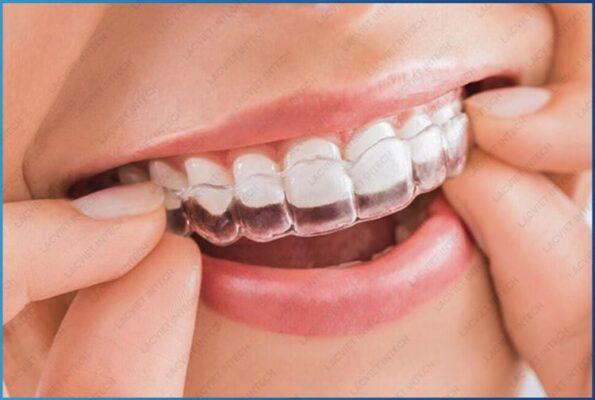 Nẹp răng khểnh mang lại nhiều ưu điểm vượt trội cho mỗi người