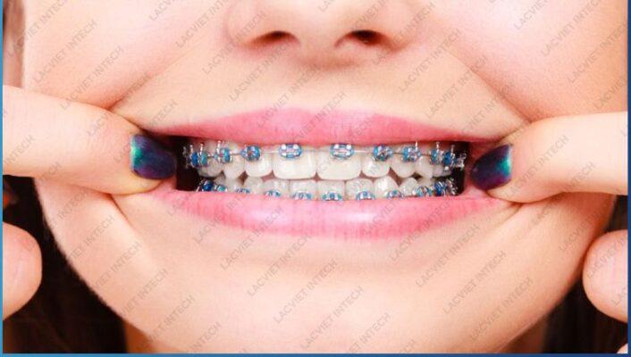 Nẹp răng mắc cài mang lại tính thẩm mỹ cao