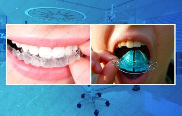 Hình ảnh khách hàng nẹp răng tháo lắp