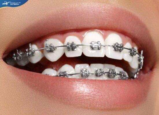 Niềng răng mắc cài tự động
