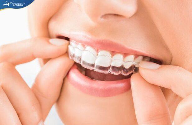 Niềng răng khay trong invisalign