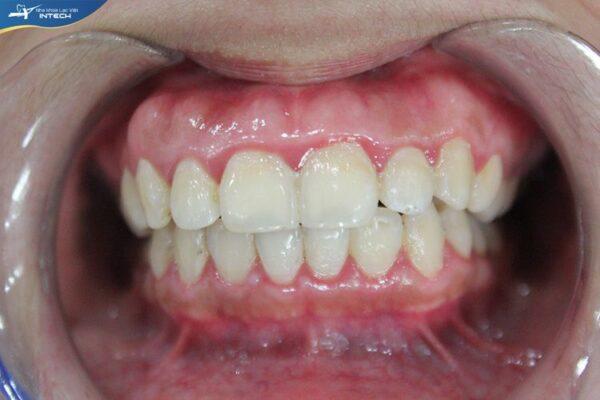 Niềng răng cải thiện tình trạng răng hô