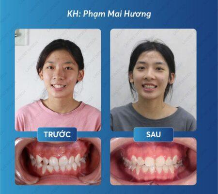 Kết quả đạt được trước và sau khi nẹp răng khểnh
