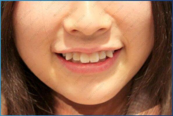 Hình ảnh khách hàng gặp tình trạng răng khểnh