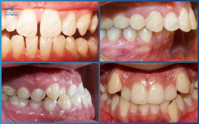 Đối tượng khách hàng cần thực hiện nạp răng mặt trong