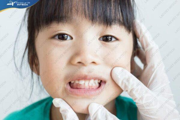 Niềng răng cho bé rất quan trọng về độ thẩm mỹ
