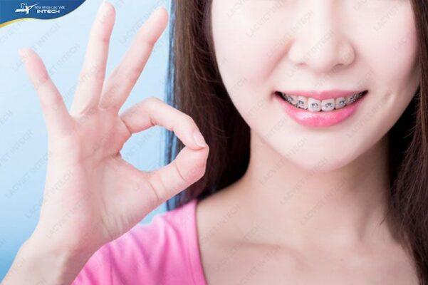 Chọn được nha khoa có dịch vụ niềng răng uy tín là rất quan trọng