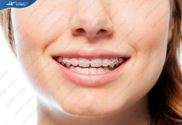 Chi phí niềng răng thưa 1 hàm phụ thuộc vào nhiều yếu tố