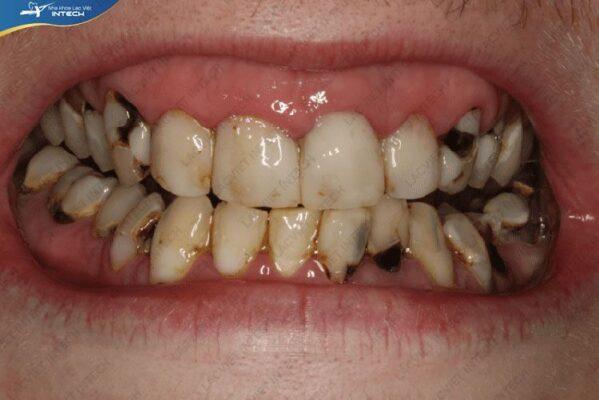 Nguyên nhân răng bị sâu là do vi khuẩn răng miệng tấn công