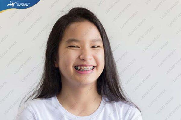 Niềng răng cho trẻ có đau không phụ thuộc vào rất nhiều yếu tố