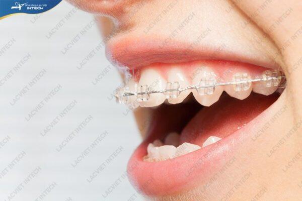 Thời gian niềng răng mắc cài sứ thông thường từ 12 - 24 tháng