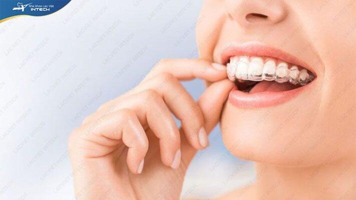 Niềng răng trong suốt có đau không là nỗi băn khoăn của nhiều người
