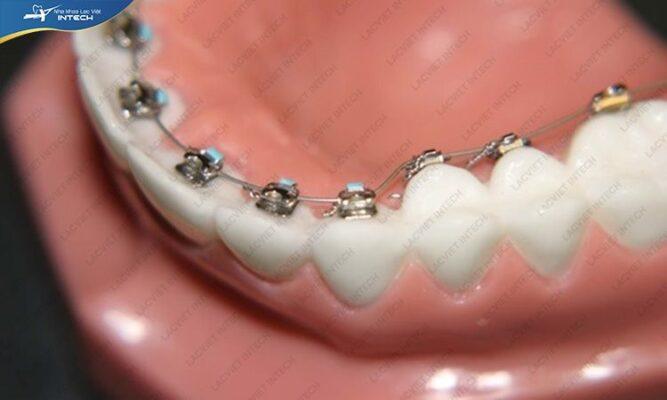 Công nghệ niềng răng càng hiện đại càng giúp rút ngắn quá trình niềng