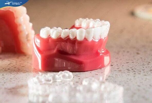 Niềng răng vô hình Clear Aligner sở hữu nhiều ưu điểm vượt trội